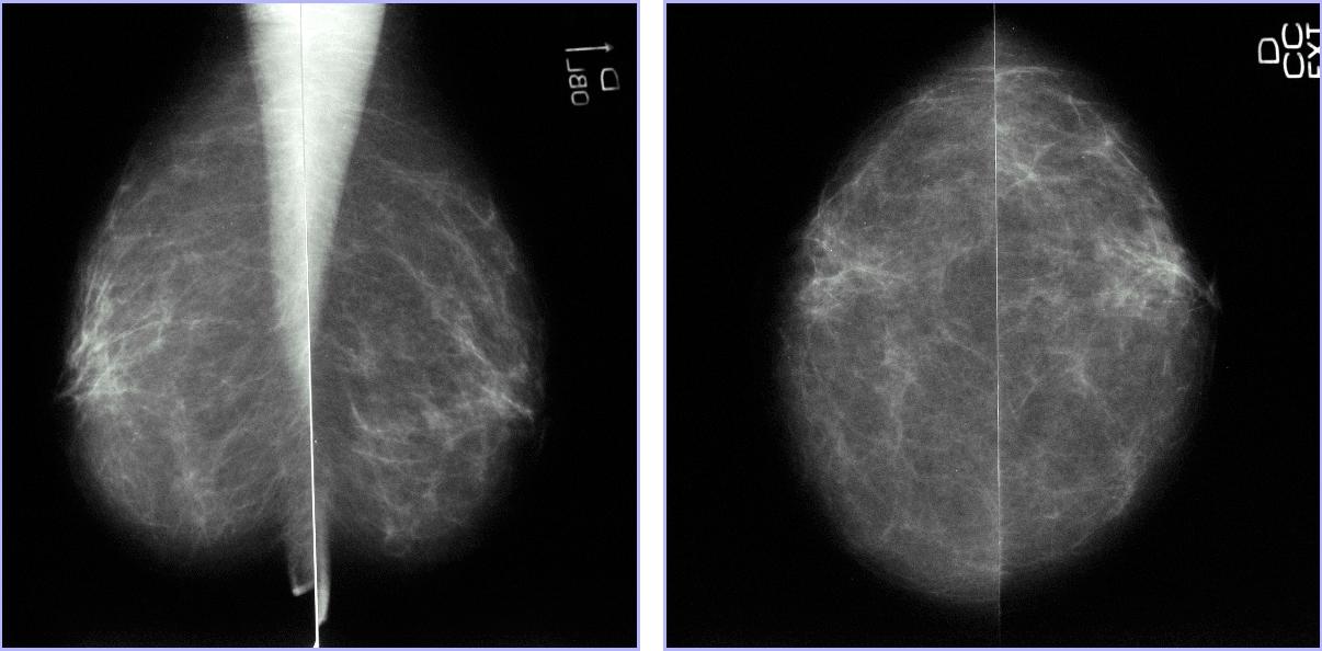 Sto. Salud Mamografia - Rayos
